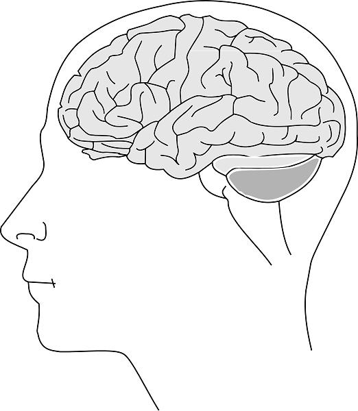 阿茲海默症的原因